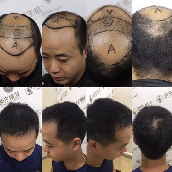 杭州哪里去植发tui新生经典